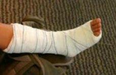 Происшествие, Турист на Аю-Даге сломал ногу