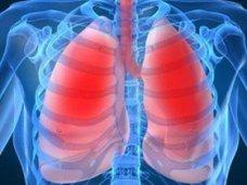 пульмонология, В Крыму 22 тыс. человек страдают обструктивным заболеванием легких