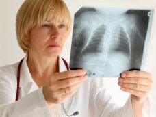 Смертность от туберкулеза в Крыму снизилась почти на 14%