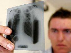 В Крыму снизилась заболеваемость туберкулёзом